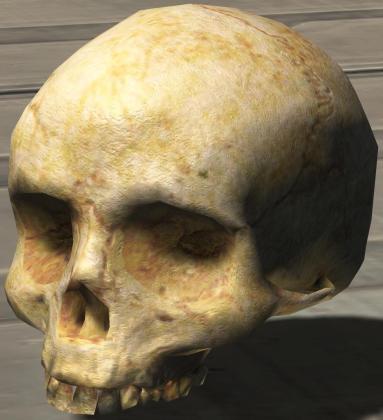 Head-shaped calcium deposite